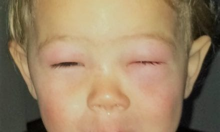 Allergie: een walnoten-kusje van mama is voldoende